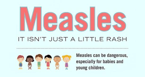 Measles: It isn't just a little rash