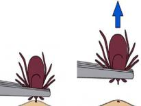 tick removal jpg 2