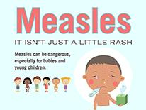 measles isn't just a little rash
